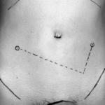 key hole surgery wounds