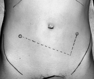 wounds for keyhole surgery