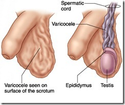 varicocele condition